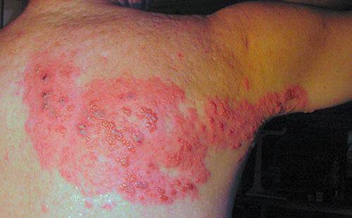 cara menghilangkan penyakit herpes