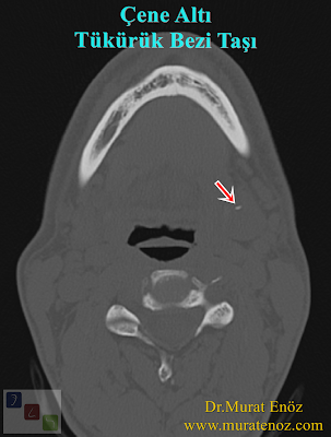 Submandibular Salivary Gland Stone