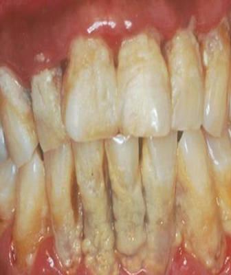 Plak atau karang gigi yaitu suatu dilema  yang sering terjadi di gigi kita Cara Menghilangkan Gigi Kuning (Plak) Menjadi Putih