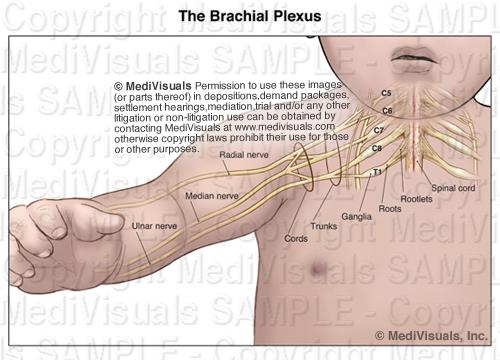 brachial plexus injury birth - photo #11