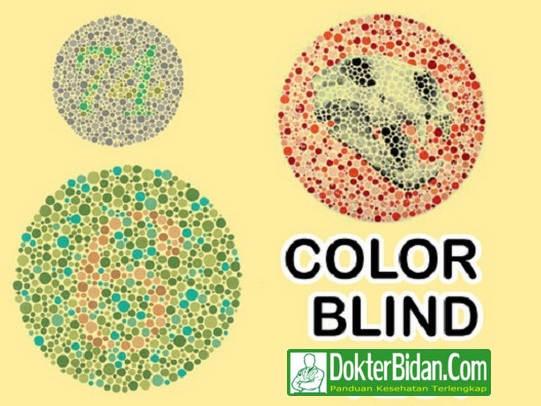 Buta Warna Color Blind Test - Penyebab, Gejala, Diagnosis, Pencegahan Dan Pengobatan Terbaik