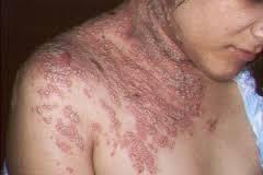 obat gatal dan eksim pada kulit seluruh badan yang sangat manjur