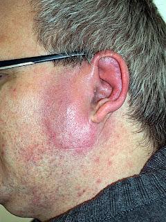 érysipèle oreille