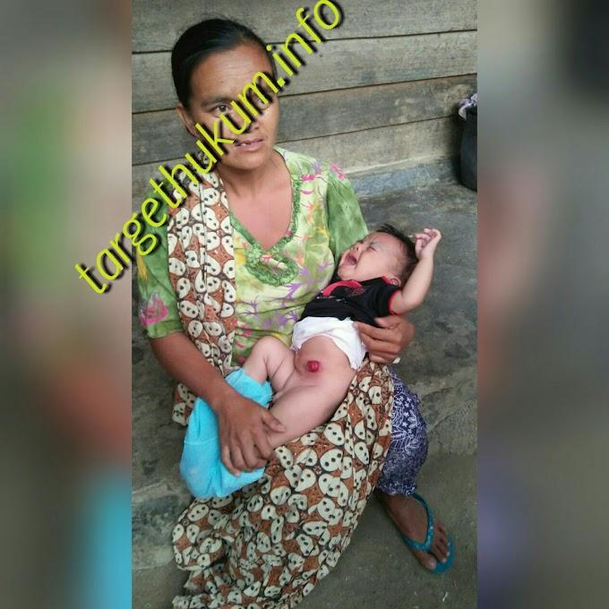 Ahmad Sandra Balita 5 Bulan Tanpa Anus Butuh Bantuan