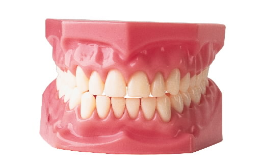 Permanent Dentures Cost May 2013