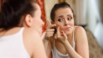 Jerawat Hormon: Pengobatan Tradisional, Pengobatan Alami, Dll
