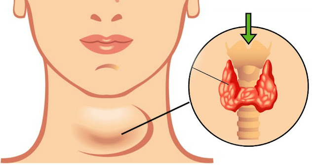 How To Cure Hypothyroidism Naturally