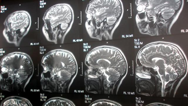 Revelan qué pasa con el cerebro humano después de la muerte clínica