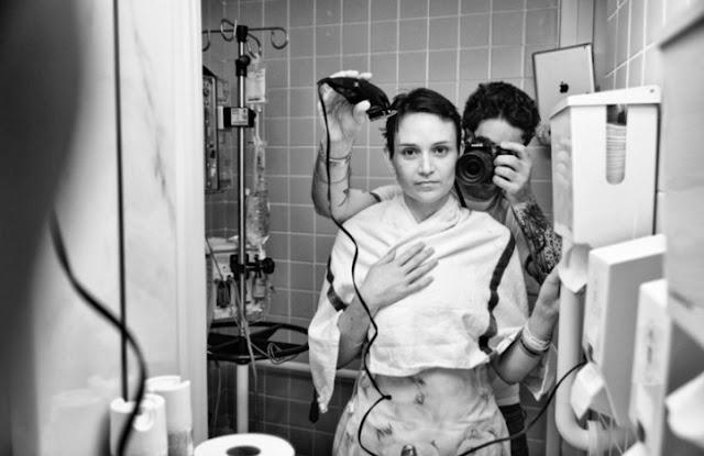 foto seorang penderita kanker stadium lanjut -3
