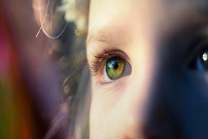 Cara Mengatasi Neuritis Optik dengan 5 Bahan Alami