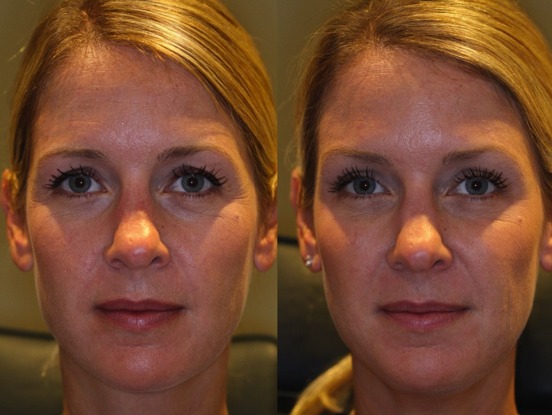 Eyebrow Lift With Botox Before And After - Eyebrow Ideas