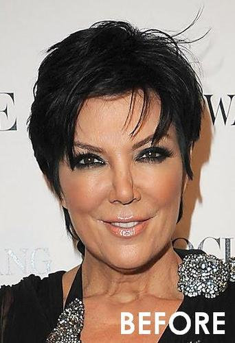 Did Kris Jenner Have Plastic Surgery