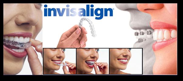 Aparat dentar invizibil Invisalign