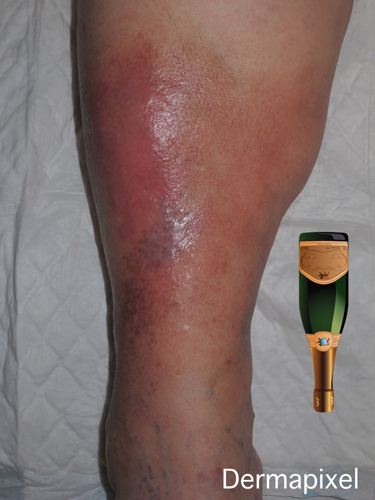celulitis bilateral extremidades inferiores