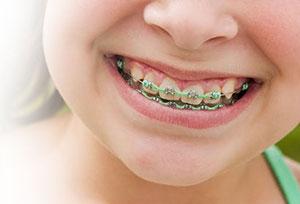 ¿Cómo sé si necesito una ortodoncia?