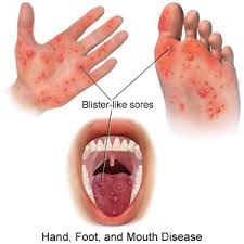 Hand Foot Mouth Disease