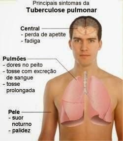 Tuberculose, Prevenção e Tratamento da Tuberculose