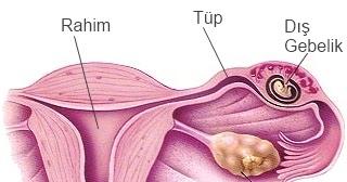 Ektopik gebelik: cerrahi ve tedavi