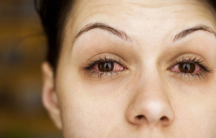 Bahaya Kalau Anda Sering Kebablasan Tidur Masih Pakai Lensa Kontak