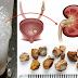 Easy Ways To Remove Kidney Stones With The Help Of This Natural Treatment