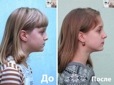 Два фото пациента в профиль до после лечения