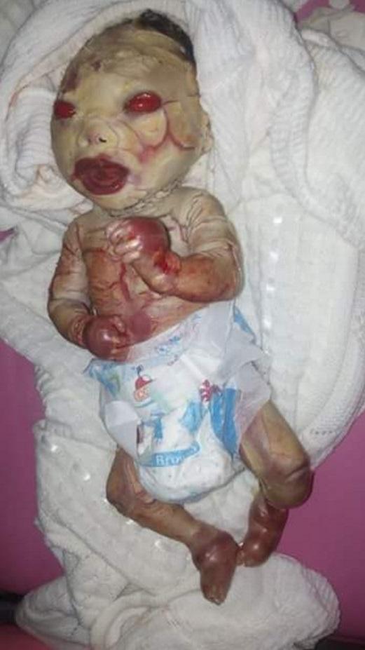 Disturbing Photos Severely Deformed Baby Allegedly