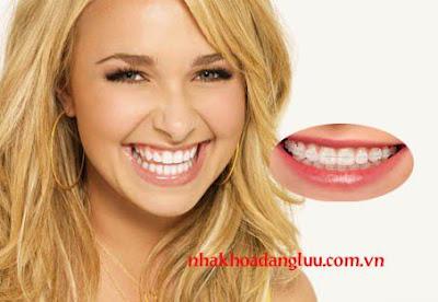 Niềng răng mắc cài là gì?