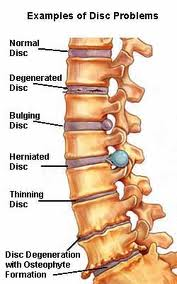 Degenerative Disc Disease Treatment in  Chennai