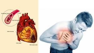 Obat Penyakit Arteri Koroner