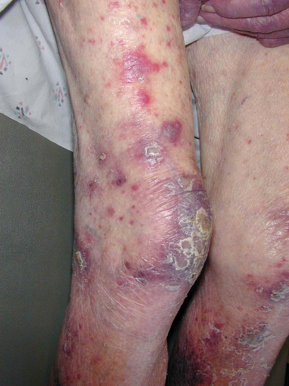 leukemia symtoms in adults jpg 1500x1000