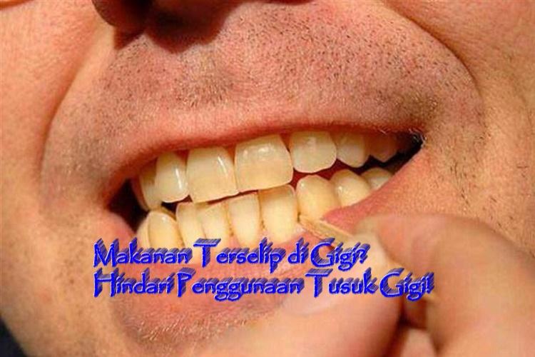 Makanan Terselip di Gigi? Hindari Penggunaan Tusuk Gigi!