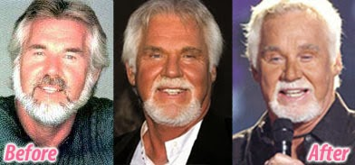 Kenny Rogers Plastic Surgery Disaster Before And After