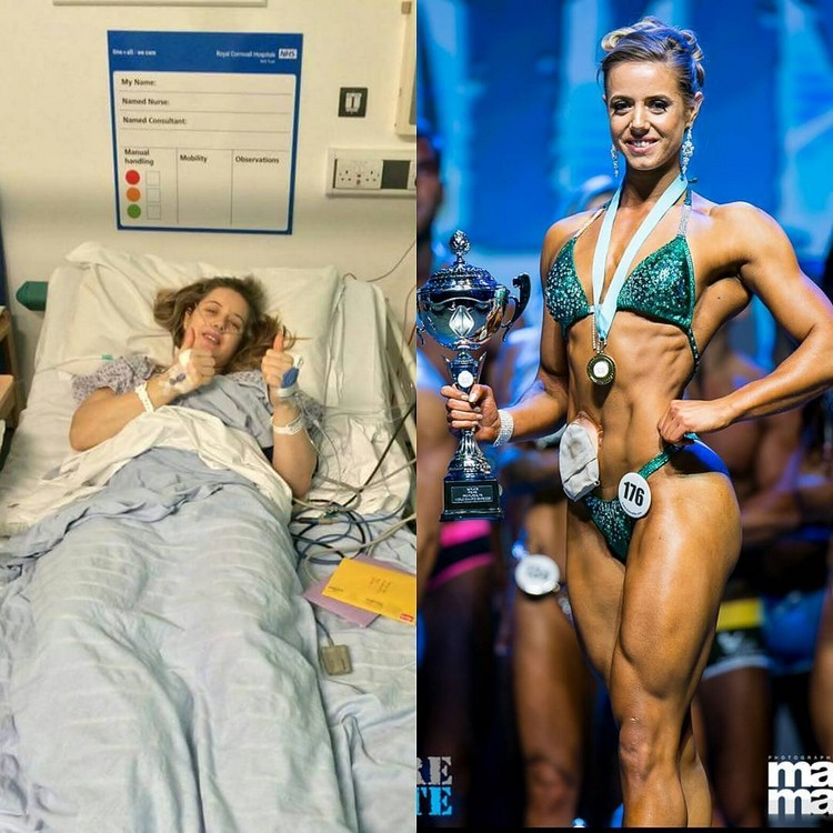 Zoey Wright changed life after being put in a pocket of stoma
