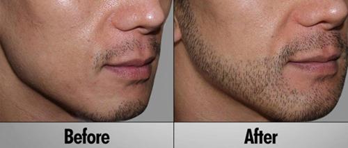 comment faire pousser la barbe rapidement