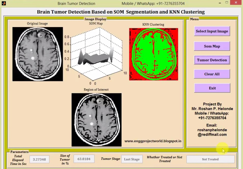 Brain Tumor Detection and Classification Using Clustering