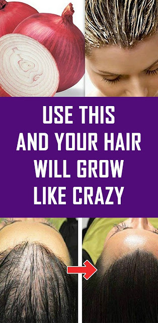 Use This And Your Hair Will Grow Like Crazy