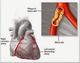 icp capsule obat jantung koroner