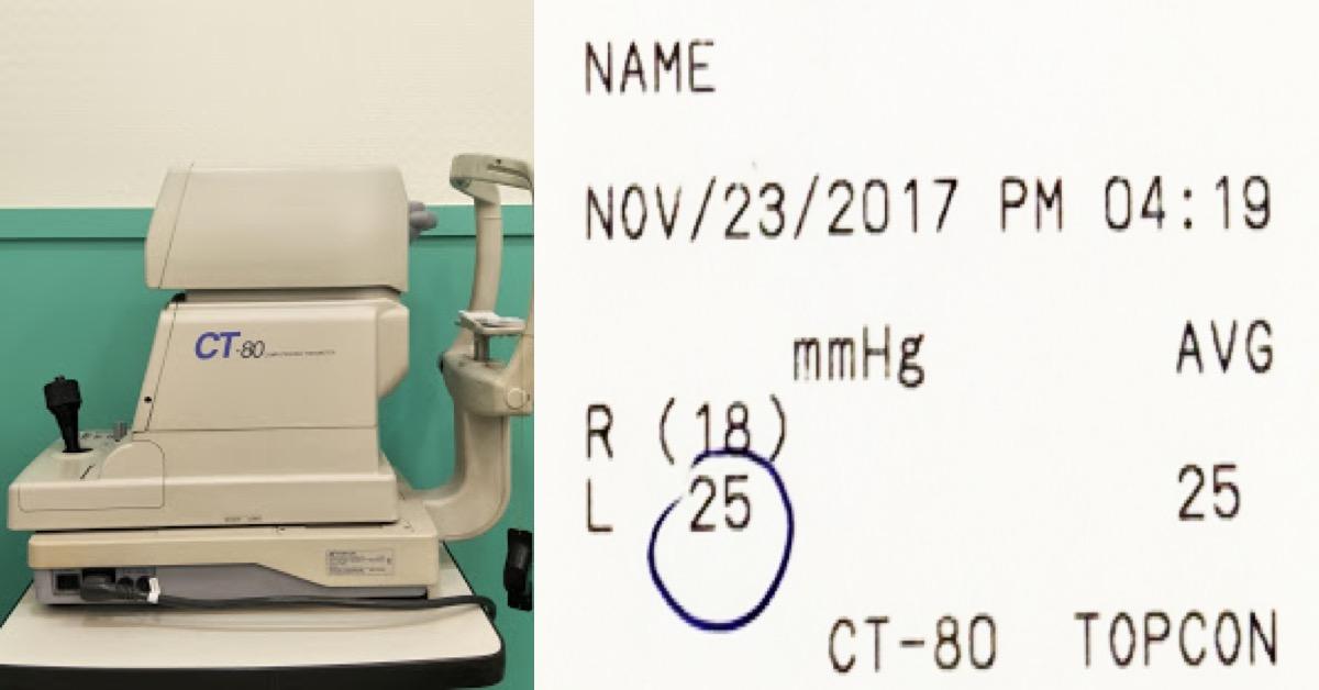 林以正東門中醫: 降眼壓的中醫輔助治療pat2