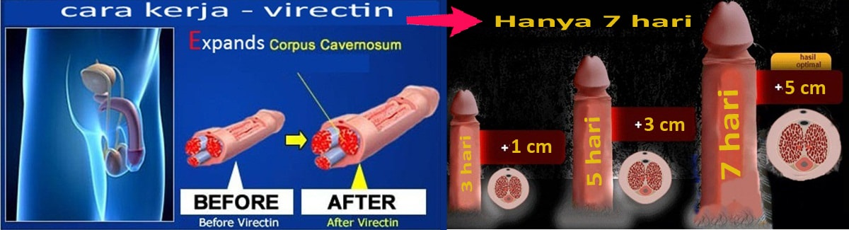 proses obat pembesar penis-pembasar penis