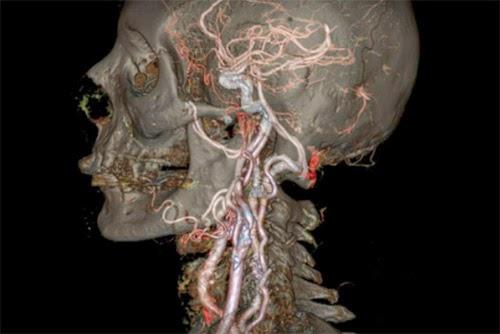 Scanner Medico Produz Imagens Detalhadas Dentro Do Corpo Humano