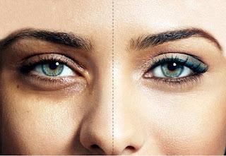 Sembuhkan Kantung Mata Dengan Pendekatan Interpersonal