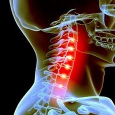 Dolore cervicale, attenzione a questi sintomi. Quando il dolore non deve essere sottovalutato