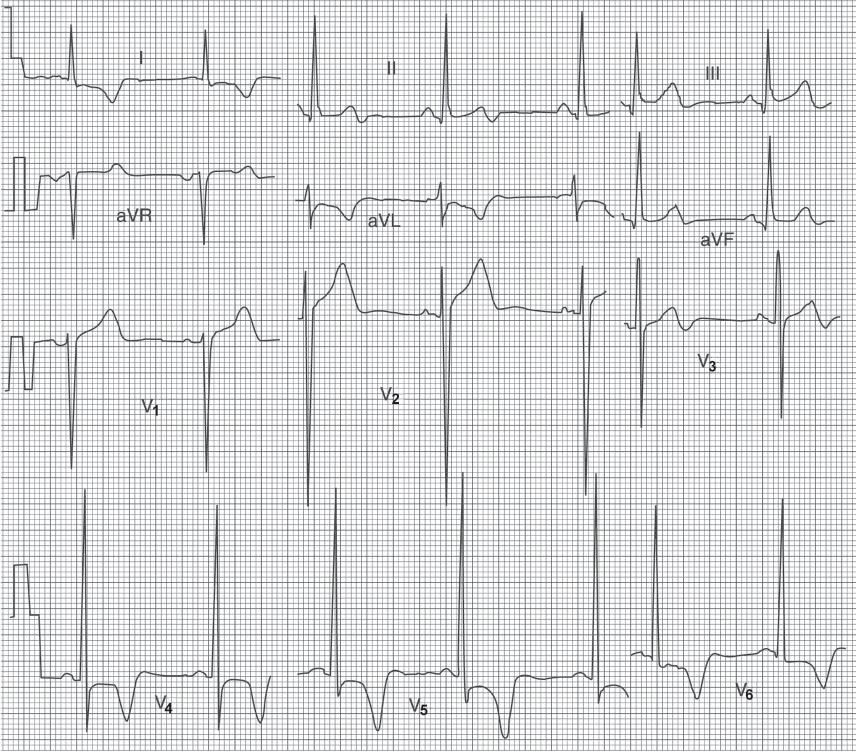 study medical photos  left ventricular hypertrophy  lvh