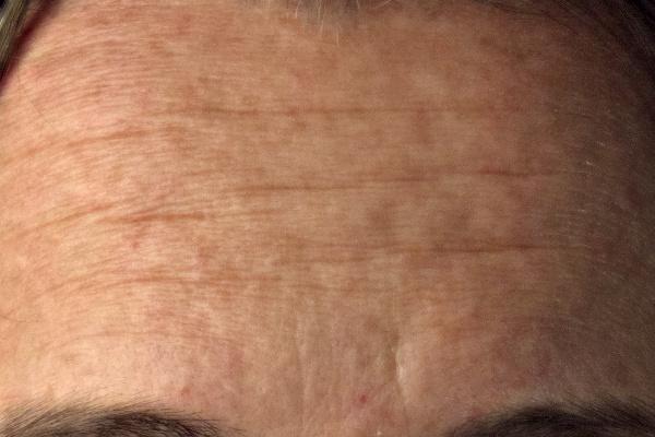Pat David Mairi Headshot Forehead Closeup Wavelet Decompose Frequency Separation