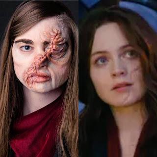 hester scar comparison
