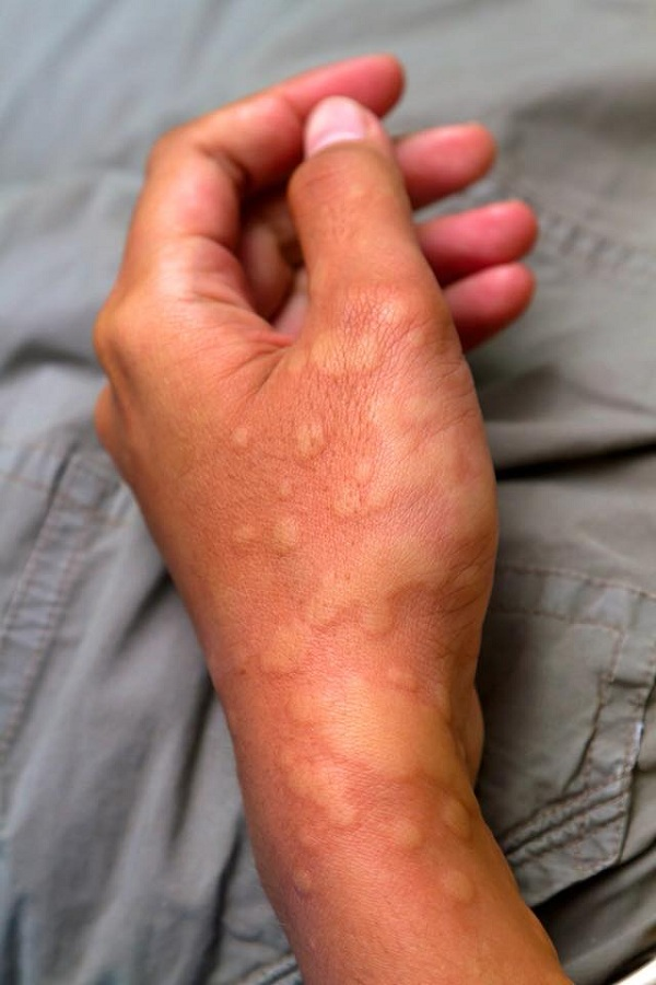 Netizen warns of the dangers from cold urticaria