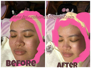 ZaXiyahomefacial ~ Dapatkan Khidmat Facial Di Rumah Lebih Mudah & Menjimatkan