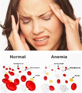 Cara Mengobati Penyakit Anemia (Kurang Darah) Secara Efektif Dan Cepat Sampai Tuntas