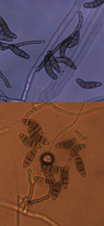 A composite microscope photograph of spores of the Curvularia fungus
