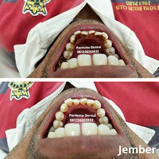 gambar foto sebelum dan sesudah scalling bersihkan karang gigi sisa rokok nikotin gigi kuning gigi kotor bekas kopi plak gigi noda gigi flek bercak pada gigi